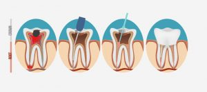 root canals 2