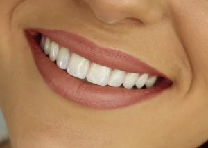 teeth whitening how to do It at home